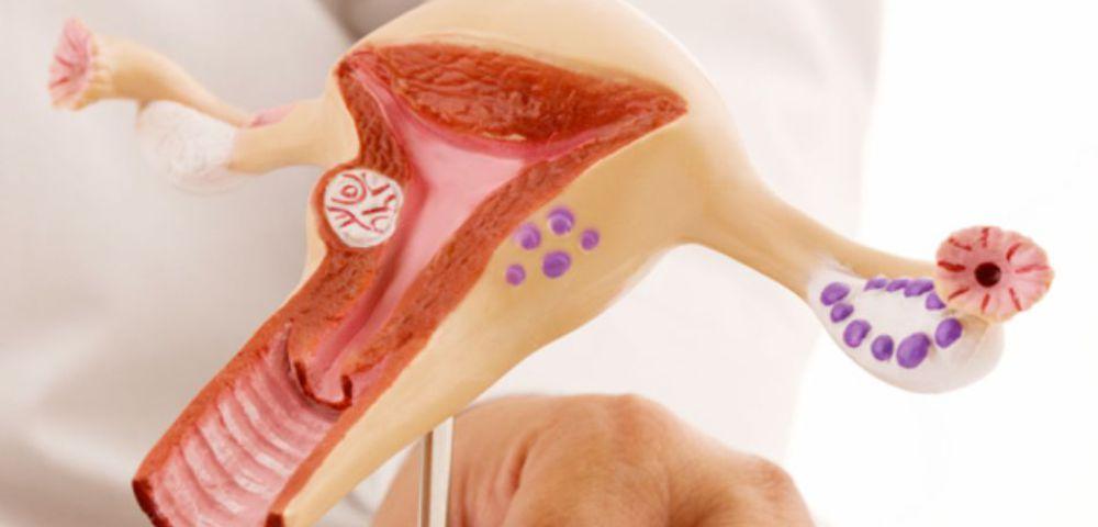 Mioma uterino: causas e tratamentos