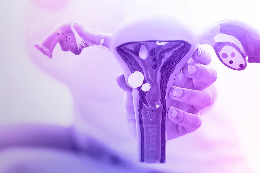 O mistério que envolve a endometriose