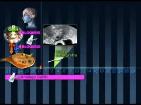 videos sobre reprodução humana | Clínica Fertilizar
